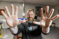 """Martin Forsmark tränar sina händer på många olika sätt, men en stark tumme är det allra viktigaste. """"Jag ser tummen som halva handen"""", säger han."""