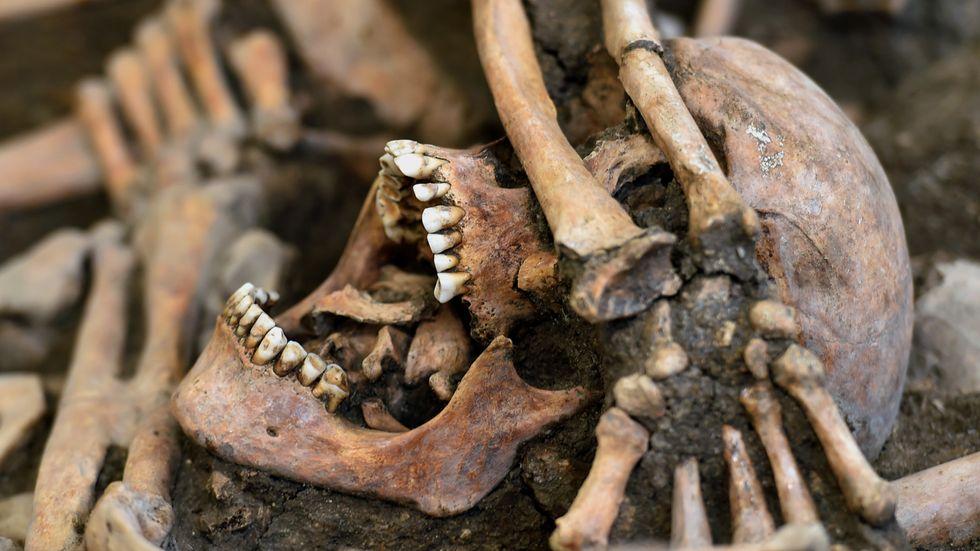 Ett kranium efter en soldat i en massgrav i Tyskland från trettioåriga kriget.