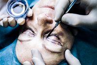Ingen statistik förs specifikt på sjukvård orsakad av estetiska ingrepp i syfte att försköna utseendet.