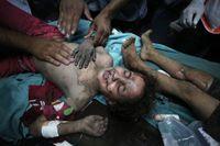 Sjukvårdare på Shifasjukhuset tröstar och tar hand om en flicka som skadats i en israelisk missilattack mot Gaza City.