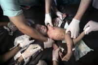 Läkare behandlar en skadad flicka på aktuen på Shifasjukhuset i Gaza City.