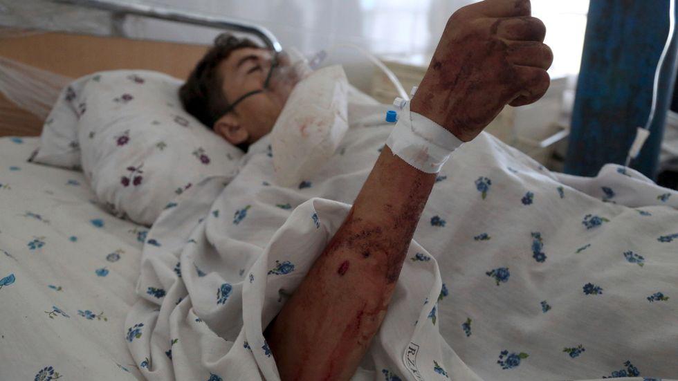 En pojke vårdas för sina skador efter en självmordsattack i Parwanprovinsen i Afghanistan i mitten av september i år. Arkivbild.