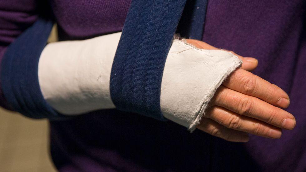 Polisen i Italien har avslöjat två gäng som misshandlat personer för att få ut försäkringspengar. Arkivbild.